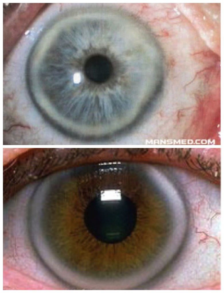 Ring Around Iris In Elderly